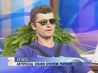 Artificial vision for the blind brain implant bionic eye jens with pinhole camera showing on cbs fandeluxe PDF
